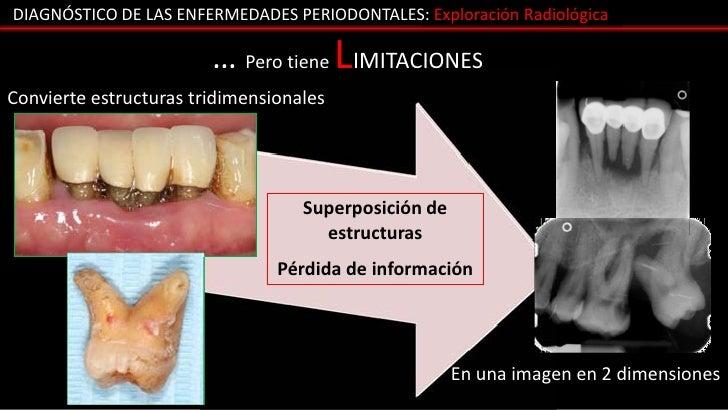 DIAGNÓSTICO DE LAS ENFERMEDADES PERIODONTALES: Exploración Radiológica                        … Pero tiene LIMITACIONESCon...