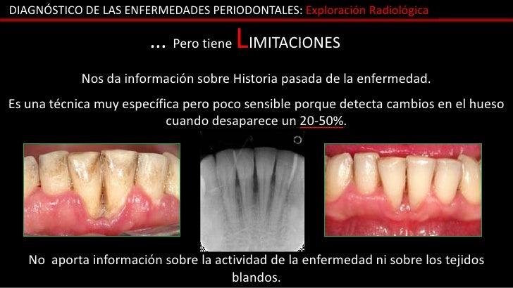 DIAGNÓSTICO DE LAS ENFERMEDADES PERIODONTALES: Exploración Radiológica                       … Pero tiene LIMITACIONES    ...