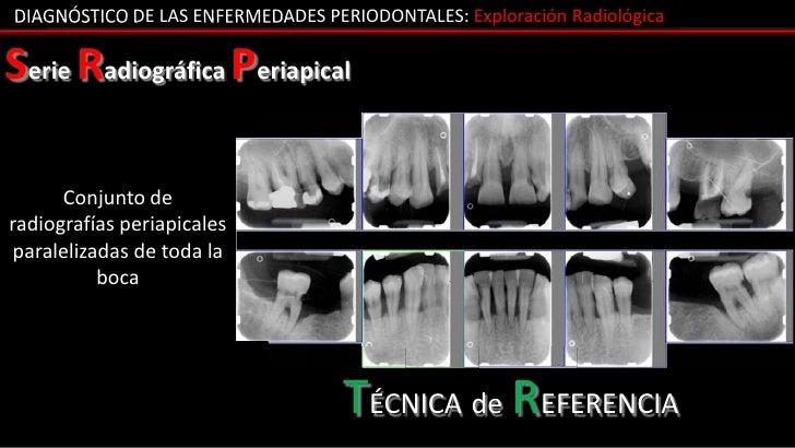DIAGNÓSTICO DE LAS ENFERMEDADES PERIODONTALES: Exploración RadiológicaSerie Radiográfica Periapical      Conjunto deradiog...