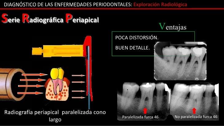 DIAGNÓSTICO DE LAS ENFERMEDADES PERIODONTALES: Exploración RadiológicaSerie Radiográfica Periapical                       ...