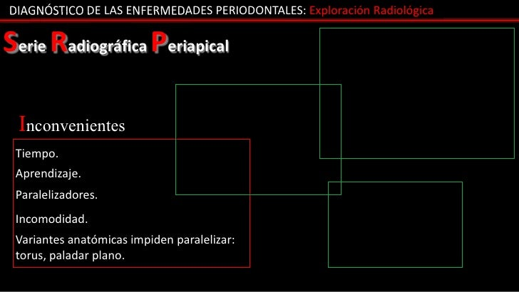 DIAGNÓSTICO DE LAS ENFERMEDADES PERIODONTALES: Exploración RadiológicaSerie Radiográfica Periapical Inconvenientes Tiempo....