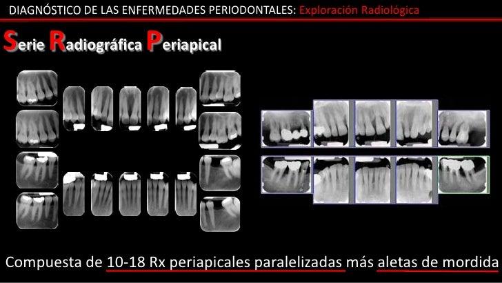 DIAGNÓSTICO DE LAS ENFERMEDADES PERIODONTALES: Exploración RadiológicaSerie Radiográfica PeriapicalCompuesta de 10-18 Rx p...