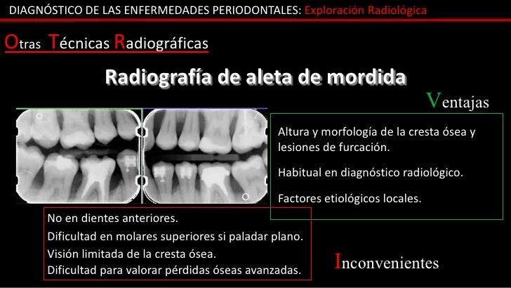 DIAGNÓSTICO DE LAS ENFERMEDADES PERIODONTALES: Exploración RadiológicaOtras Técnicas Radiográficas                 Radiogr...
