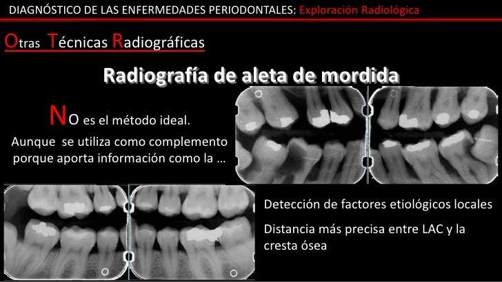 DIAGNÓSTICO DE LAS ENFERMEDADES PERIODONTALES: Exploración RadiológicaOtras Técnicas Radiográficas                Radiogra...