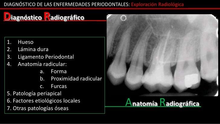 DIAGNÓSTICO DE LAS ENFERMEDADES PERIODONTALES: Exploración RadiológicaDiagnóstico Radiográfico 1.   Hueso 2.   Lámina dura...