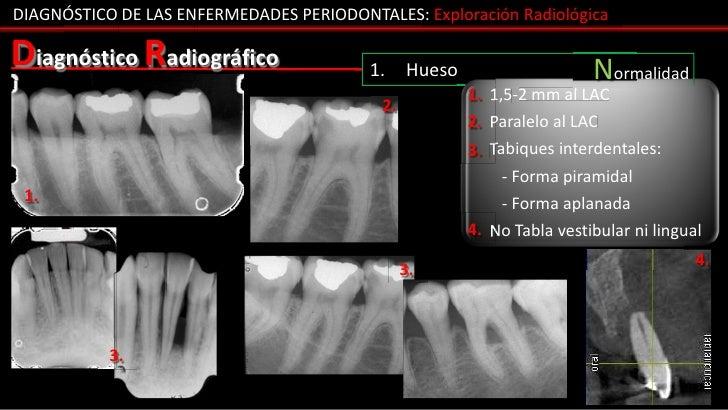DIAGNÓSTICO DE LAS ENFERMEDADES PERIODONTALES: Exploración RadiológicaDiagnóstico Radiográfico                 1.     Hues...