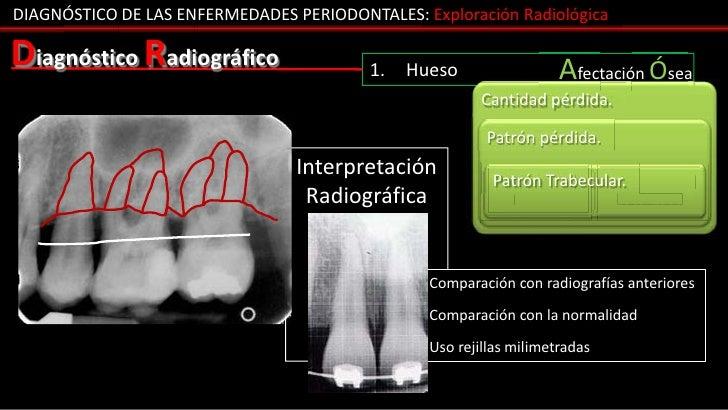 DIAGNÓSTICO DE LAS ENFERMEDADES PERIODONTALES: Exploración RadiológicaDiagnóstico Radiográfico                 1.   Hueso ...