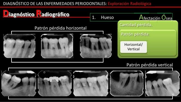 DIAGNÓSTICO DE LAS ENFERMEDADES PERIODONTALES: Exploración RadiológicaDiagnóstico Radiográfico                  1.   Hueso...