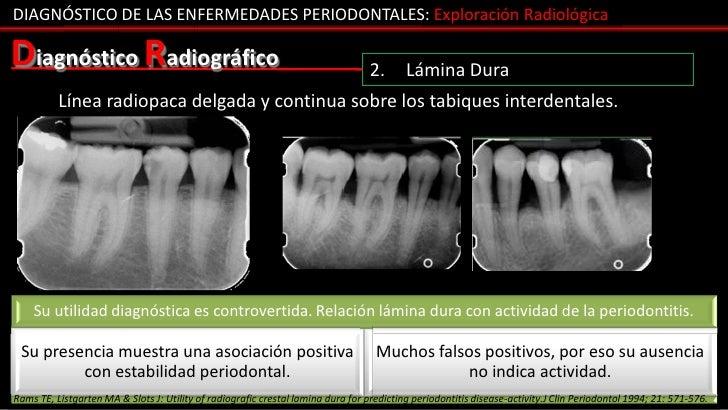 DIAGNÓSTICO DE LAS ENFERMEDADES PERIODONTALES: Exploración RadiológicaDiagnóstico Radiográfico                            ...