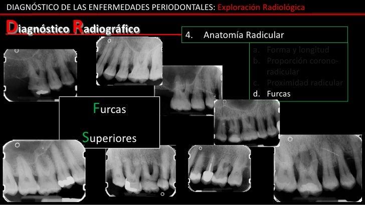 DIAGNÓSTICO DE LAS ENFERMEDADES PERIODONTALES: Exploración RadiológicaDiagnóstico Radiográfico                 4.   Anatom...