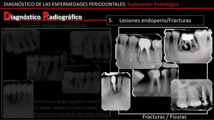 DIAGNÓSTICO DE LAS ENFERMEDADES PERIODONTALES: Exploración RadiológicaDiagnóstico Radiográfico                          5....