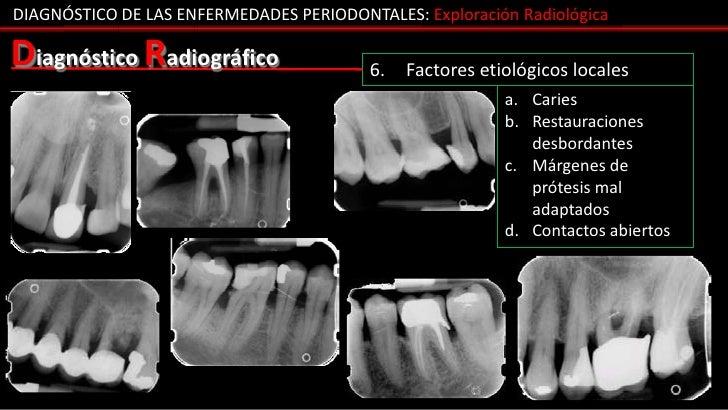 DIAGNÓSTICO DE LAS ENFERMEDADES PERIODONTALES: Exploración RadiológicaDiagnóstico Radiográfico                 6.   Factor...
