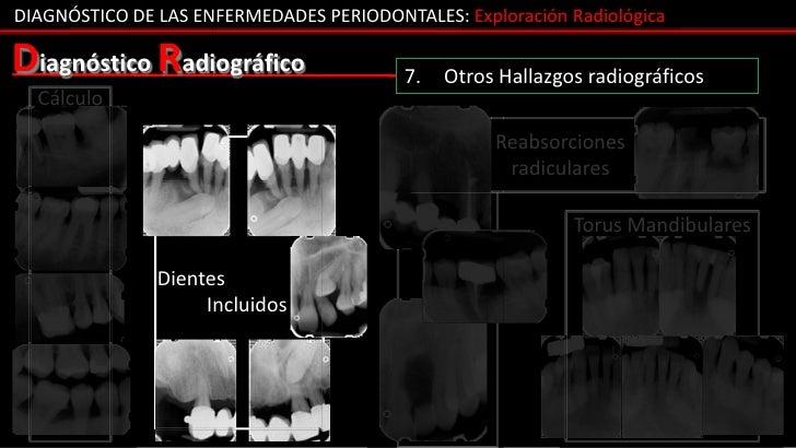 DIAGNÓSTICO DE LAS ENFERMEDADES PERIODONTALES: Exploración RadiológicaDiagnóstico Radiográfico                 7.   Otros ...