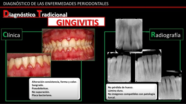 DIAGNÓSTICO DE LAS ENFERMEDADES PERIODONTALESDiagnóstico Tradicional                                 GINGIVITISClínica    ...