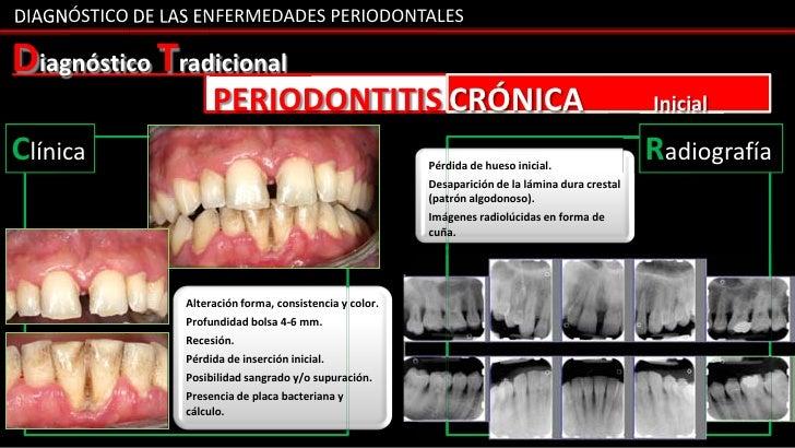 DIAGNÓSTICO DE LAS ENFERMEDADES PERIODONTALESDiagnóstico Tradicional                      PERIODONTITIS CRÓNICA           ...