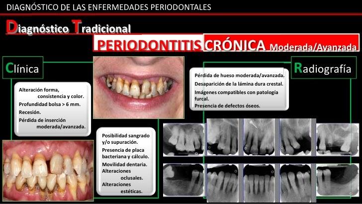 DIAGNÓSTICO DE LAS ENFERMEDADES PERIODONTALESDiagnóstico Tradicional                                  PERIODONTITIS CRÓNIC...