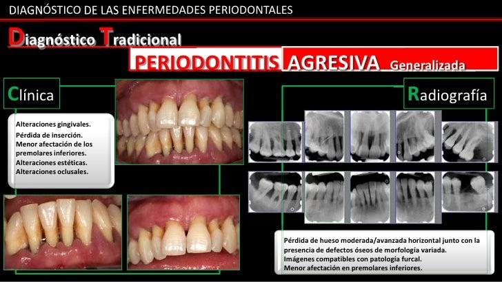 DIAGNÓSTICO DE LAS ENFERMEDADES PERIODONTALESDiagnóstico Tradicional                            PERIODONTITIS AGRESIVA    ...