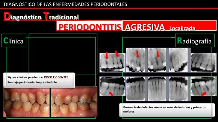 DIAGNÓSTICO DE LAS ENFERMEDADES PERIODONTALESDiagnóstico Tradicional                                       PERIODONTITIS A...