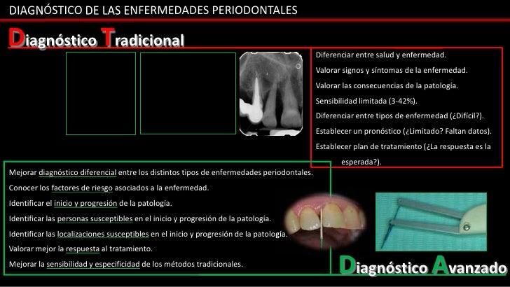 DIAGNÓSTICO DE LAS ENFERMEDADES PERIODONTALESDiagnóstico Tradicional                                                      ...