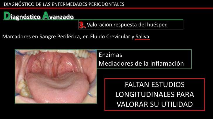 DIAGNÓSTICO DE LAS ENFERMEDADES PERIODONTALESDiagnóstico Avanzado                                3. Valoración respuesta d...