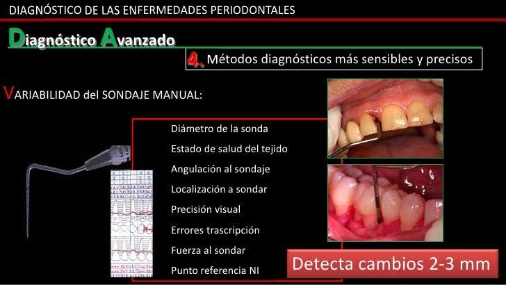 DIAGNÓSTICO DE LAS ENFERMEDADES PERIODONTALESDiagnóstico Avanzado                             4. Métodos diagnósticos más ...
