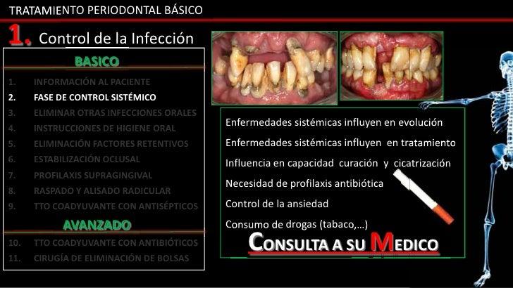 La salud gingival