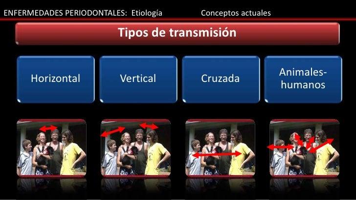ENFERMEDADES PERIODONTALES: Etiología   Conceptos actuales                          Tipos de transmisión                  ...