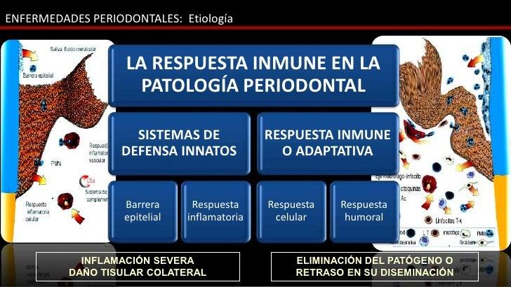 ENFERMEDADES PERIODONTALES: Etiología                   LA RESPUESTA INMUNE EN LA                     PATOLOGÍA PERIODONTA...