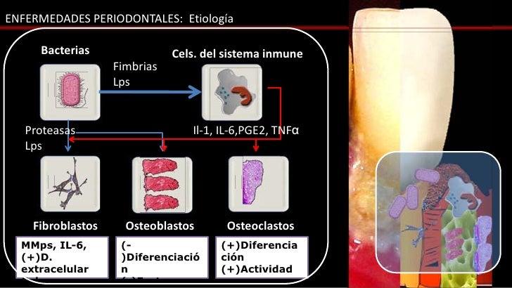 ENFERMEDADES PERIODONTALES: Etiología     Bacterias                Cels. del sistema inmune                   Fimbrias    ...