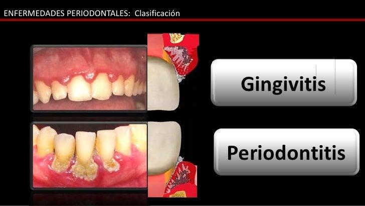 ENFERMEDADES PERIODONTALES: Clasificación                                            Gingivitis                           ...
