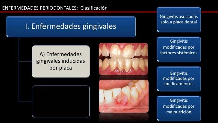 ENFERMEDADES PERIODONTALES: Clasificación                                            Gingivitis asociadas                 ...