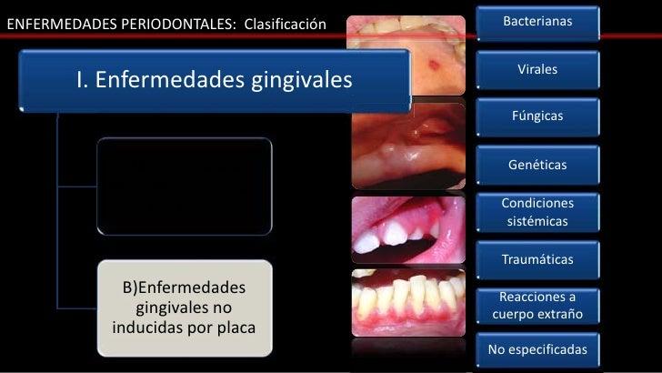 ENFERMEDADES PERIODONTALES: Clasificación     Bacterianas                                                Virales        I....