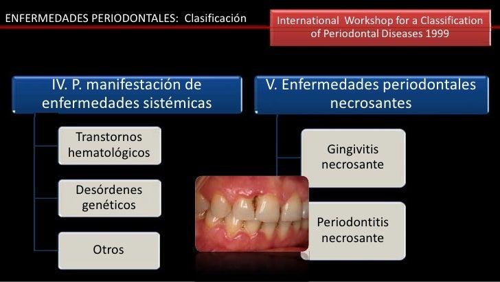ENFERMEDADES PERIODONTALES: Clasificación    International Workshop for a Classification                                  ...