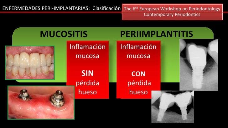 ENFERMEDADES PERI-IMPLANTARIAS: Clasificación The 6th European Workshop on Periodontology                                 ...