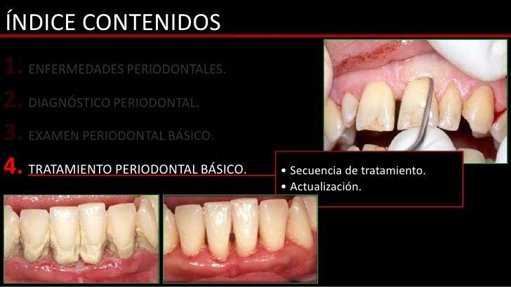 ÍNDICE CONTENIDOS1. ENFERMEDADES PERIODONTALES.2. DIAGNÓSTICO PERIODONTAL.3. EXAMEN PERIODONTAL BÁSICO.4. TRATAMIENTO PERI...