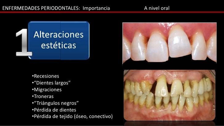 ENFERMEDADES PERIODONTALES: Importancia          A nivel oral           Alteraciones             estéticas          •Reces...