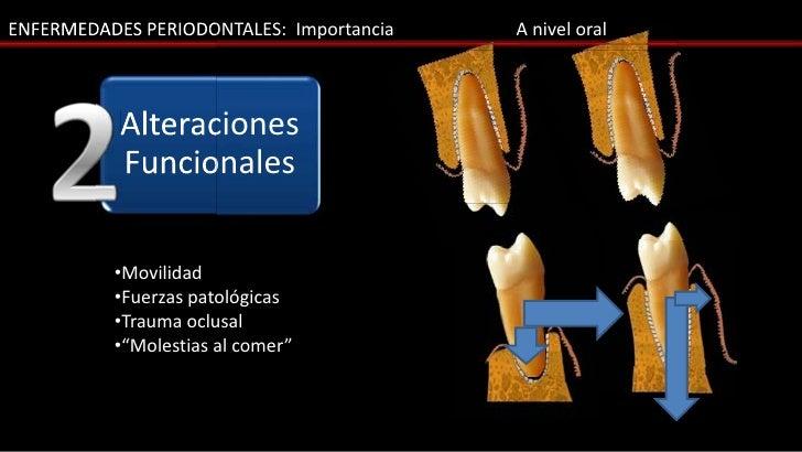 ENFERMEDADES PERIODONTALES: Importancia   A nivel oral           Alteraciones           Funcionales          •Movilidad   ...