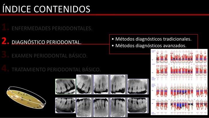 ÍNDICE CONTENIDOS1. ENFERMEDADES PERIODONTALES.2. DIAGNÓSTICO PERIODONTAL.          • Métodos diagnósticos tradicionales. ...