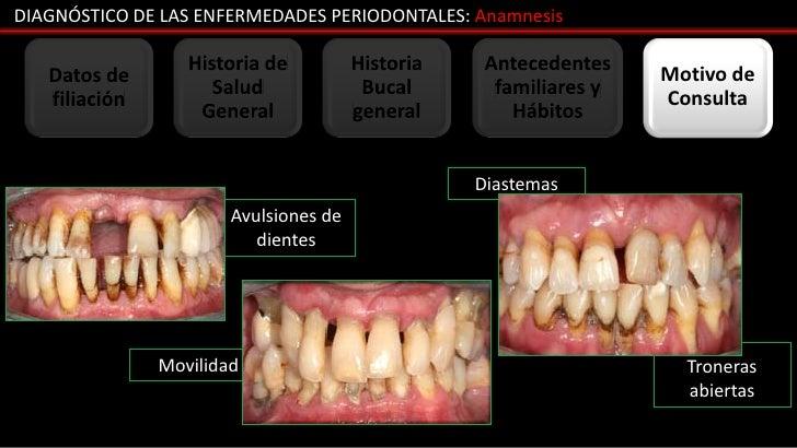 DIAGNÓSTICO DE LAS ENFERMEDADES PERIODONTALES: Anamnesis                  Historia de          Historia    Antecedentes   ...