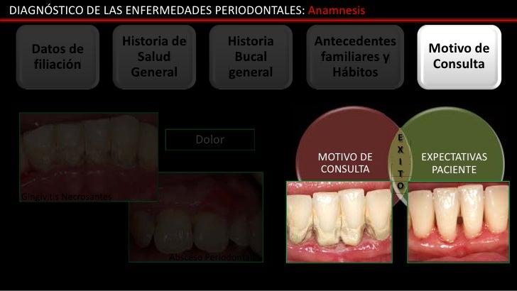 DIAGNÓSTICO DE LAS ENFERMEDADES PERIODONTALES: Anamnesis                          Historia de           Historia   Anteced...