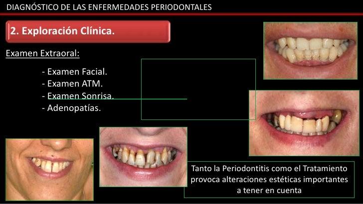 DIAGNÓSTICO DE LAS ENFERMEDADES PERIODONTALES 2. Exploración Clínica.Examen Extraoral:        - Examen Facial.        - Ex...