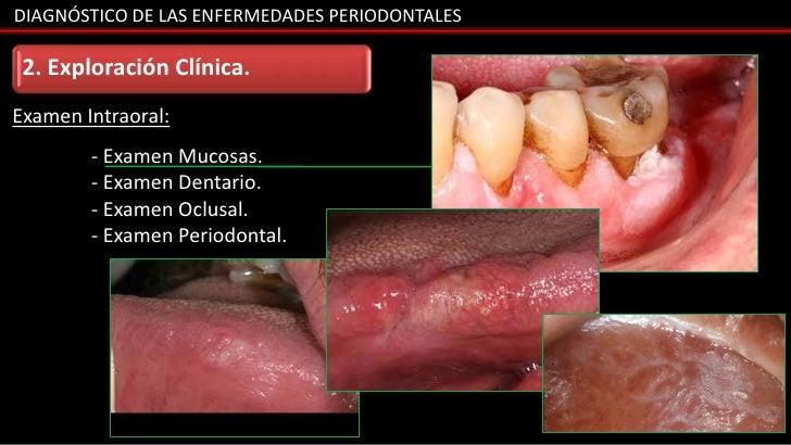 DIAGNÓSTICO DE LAS ENFERMEDADES PERIODONTALES 2. Exploración Clínica.Examen Intraoral:        - Examen Mucosas.        - E...