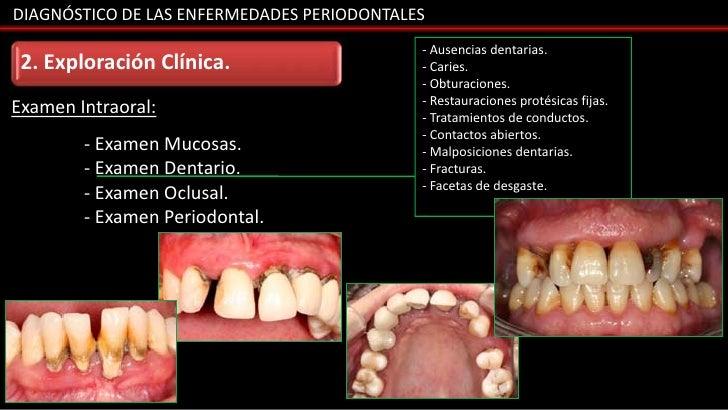 DIAGNÓSTICO DE LAS ENFERMEDADES PERIODONTALES                                            - Ausencias dentarias. 2. Explora...