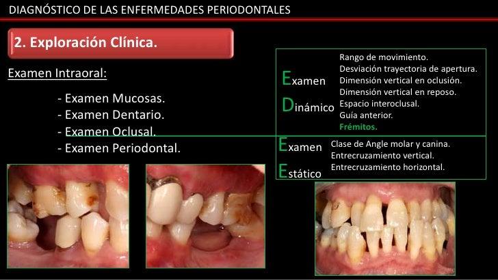 DIAGNÓSTICO DE LAS ENFERMEDADES PERIODONTALES 2. Exploración Clínica.                                                     ...