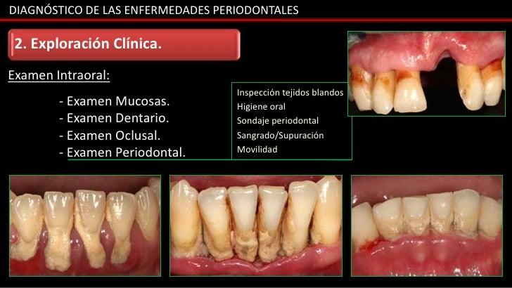 DIAGNÓSTICO DE LAS ENFERMEDADES PERIODONTALES 2. Exploración Clínica.Examen Intraoral:                                   I...