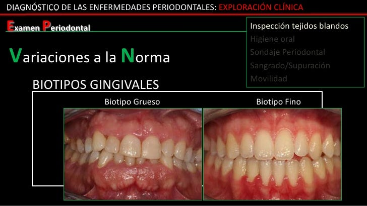 DIAGNÓSTICO DE LAS ENFERMEDADES PERIODONTALES: EXPLORACIÓN CLÍNICAExamen Periodontal                                    In...