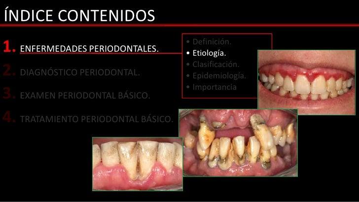 ÍNDICE CONTENIDOS1. ENFERMEDADES PERIODONTALES.       • Definición.                                     • Etiología.2. DIA...