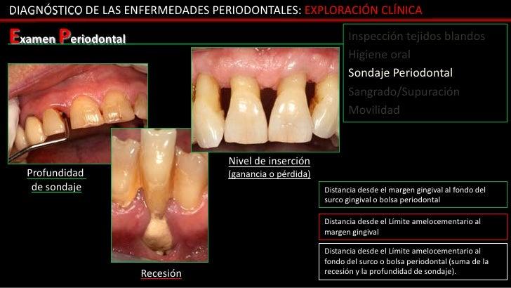 DIAGNÓSTICO DE LAS ENFERMEDADES PERIODONTALES: EXPLORACIÓN CLÍNICAExamen Periodontal                                      ...