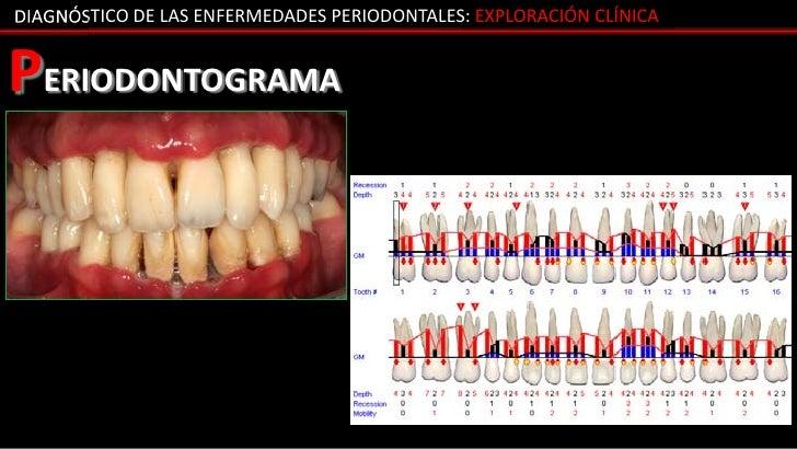 DIAGNÓSTICO DE LAS ENFERMEDADES PERIODONTALES: EXPLORACIÓN CLÍNICAPERIODONTOGRAMA
