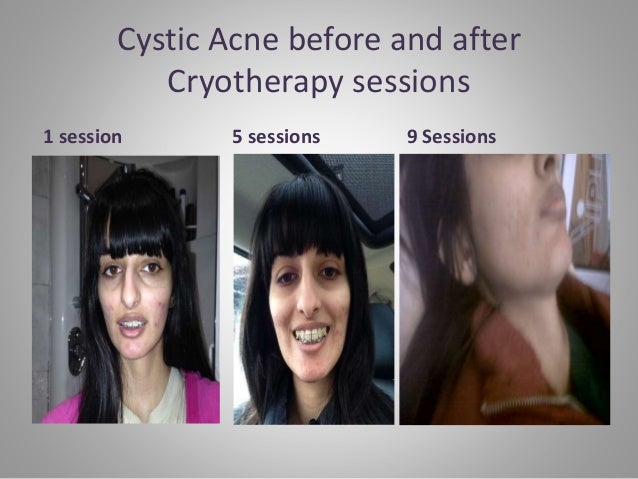 Cystic Acne before and after Cryotherapy sessions 1 session 5 sessions 9 Sessions